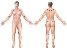 Avances en la detección de la fibromialgia