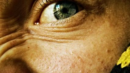 El grano de resfriado hipodérmico sobre la persona el tratamiento