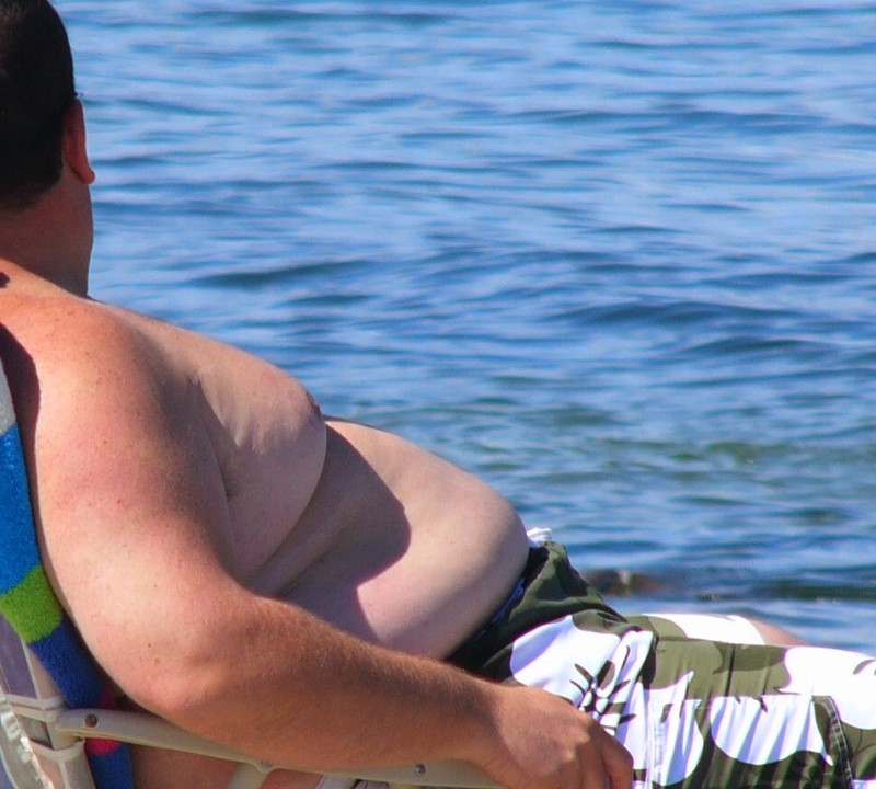 Ginecomastia, causas y tratamiento