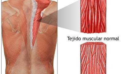 Distensión muscular, una molestia dolorosa