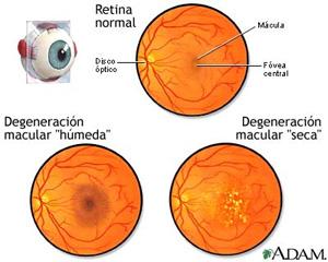 La degeneración macular