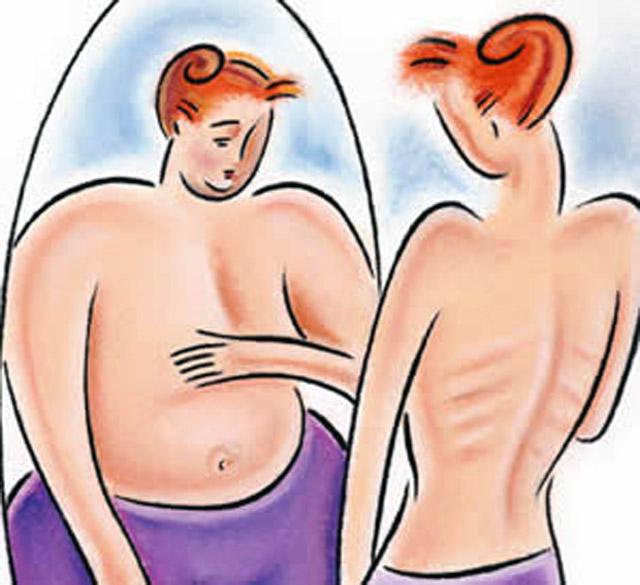 Respuestas de la homeopatía ante la anorexia y bulimia