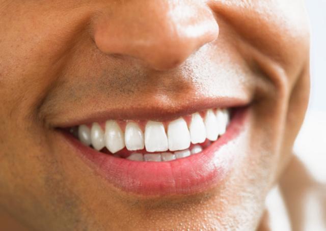 Unos dientes blancos para una sonrisa perfecta