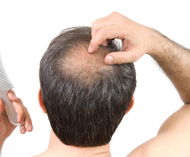 Las revocaciones sobre los medios para el crecimiento de los cabello con aliekspress